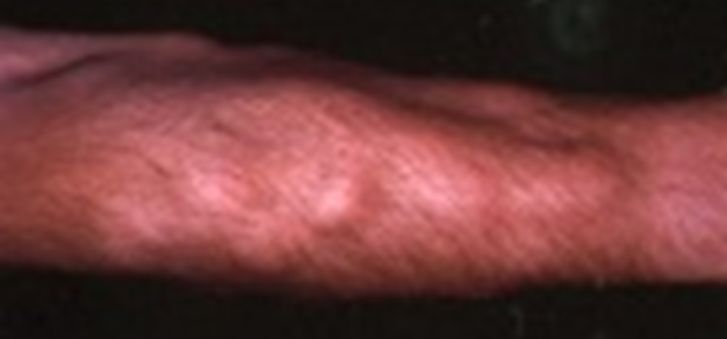 Dercum's Disease Picture