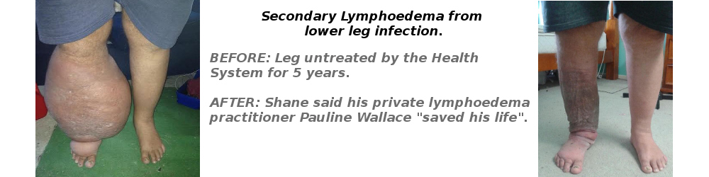 Secondary Lymphoedema